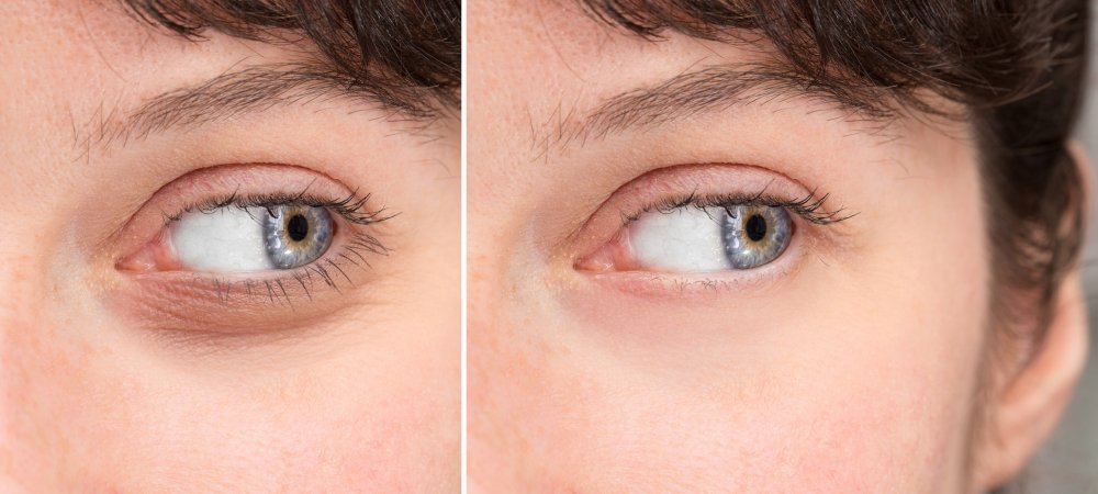 Worki pod oczami - likwidacja za pomocą zabiegu HIFU