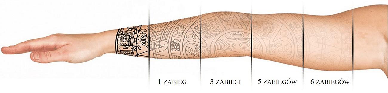 etapy usuwania tatuazu