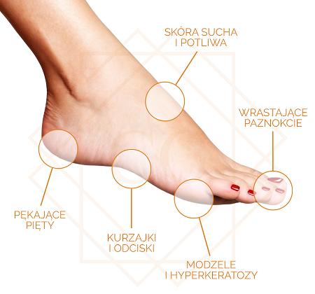 stopa-podologia