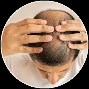 Objawy łysienia neurotycznego