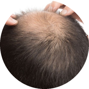 łysienie – przyczyny i rodzaje